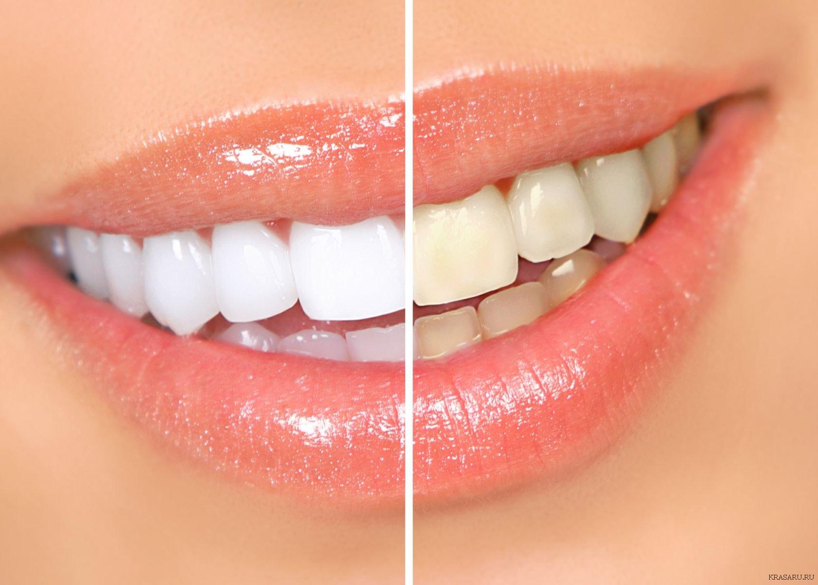 Отбеливания зубов перекисью водорода