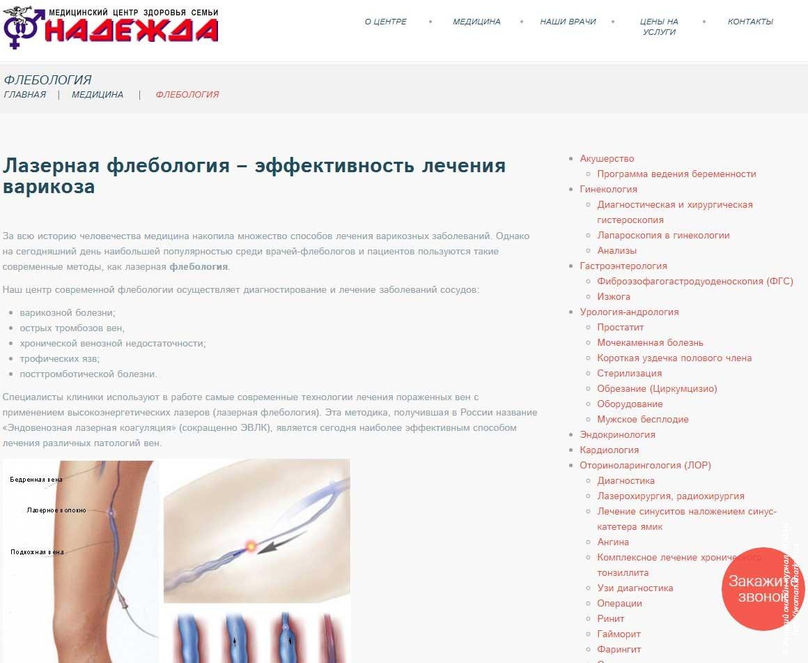 Эффективность лазерной флебологии